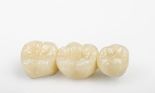 All-ceramic bridge for tooth loss.