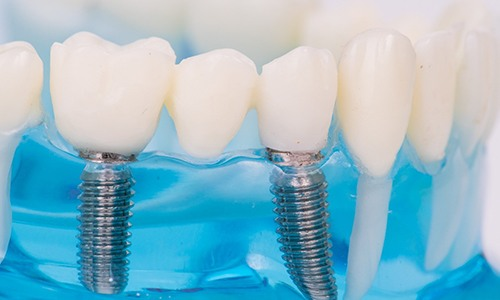Implant-supported bridge for missing teeth.