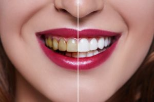 split picture of a smile before and after teeth whitening